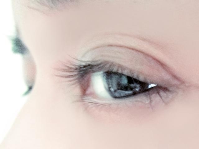 目の下の脂肪のたるみが原因でできる赤くま